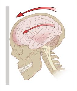 538px-Concussion_mechanics.svg